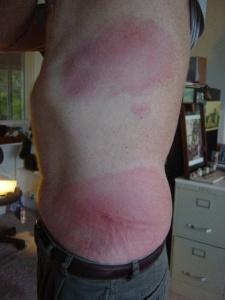 William's centipede bites